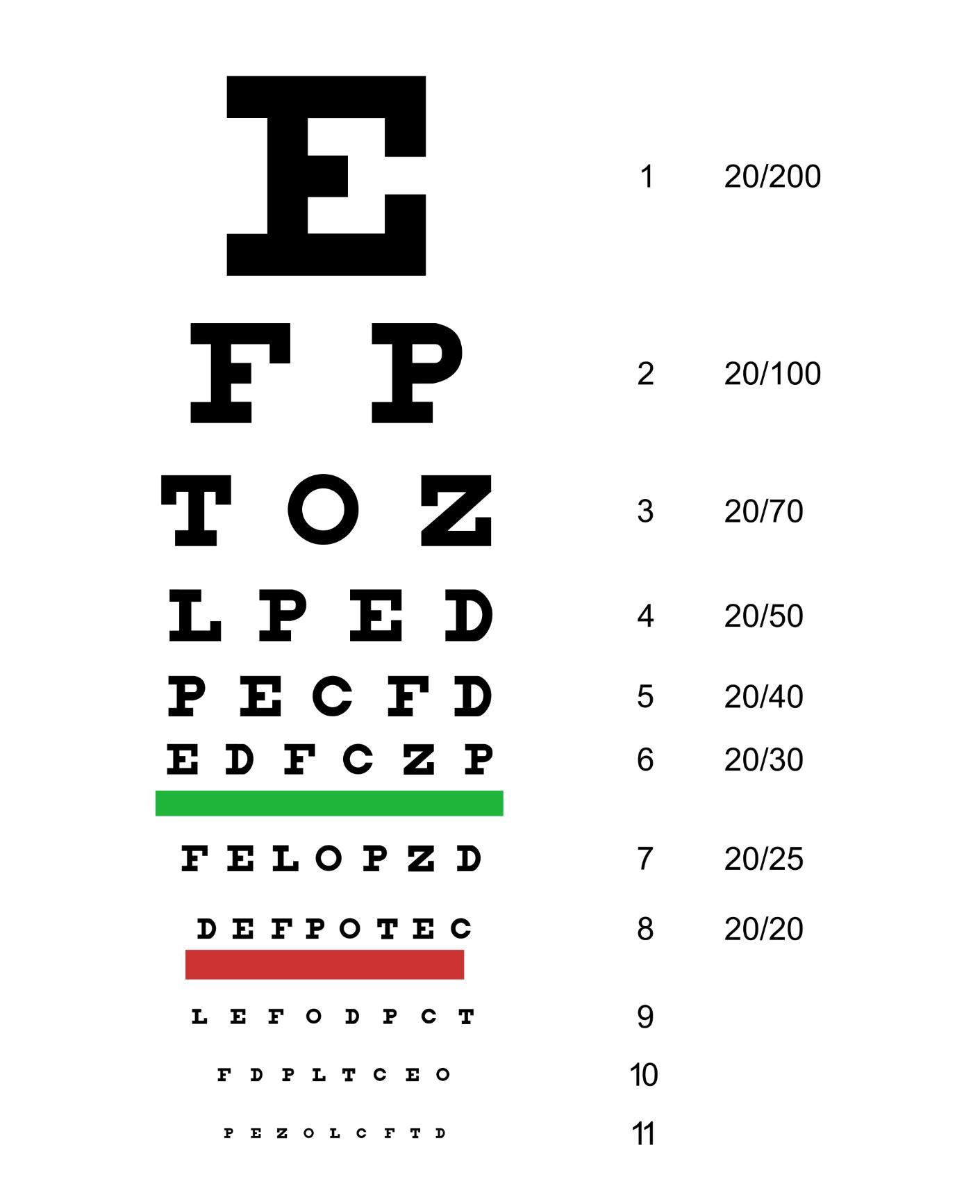 harte kontaktlinsen astigmatismus
